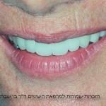 הלבנת שיניים אחרי