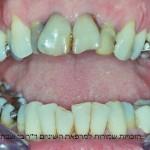 הלבנת שיניים לפני