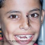 רופא שיניים לילדים פרדס חנה