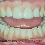 שיחזור של השן