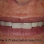 אחרי שיקום והלבנת השן - כתר על גבי שלד זירקוניה