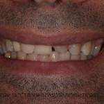 גבר עם חיוך לא אסטטי