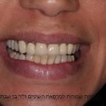מטופלת חודש לפני חתונתה, עם שחזורים לא אסתטיים בקבוצת שיניים חותכות עליונות, מטעמי תקציב, בוצע שיקום רק ל 4 שיניים קידמיות לא כולל ניבים