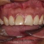 עובדת זרה עם שן חותכת קידמית בגוון צהוב ובהטייה שפתית מודגשת