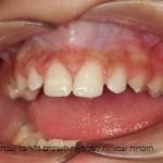 שחזור השן על ידי שרף מרוכב (קומפוזיט) במרפאה (בטיפול של שעה)
