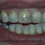 מטופלת בת 35 עם שחזורים לא אסתטיים בשיניים חותכות עליונות, ורווחים לא אסתטיים
