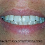 חיוך המטופלת בסיום השחזור במרפאה