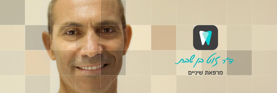 טיפולי שיניים לפני ואחרי - מרפאת השיניים בפרדס חנה